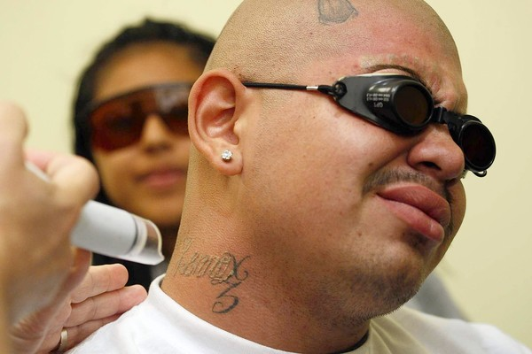Father gregory boyle of homeboy industries puts for Best tattoo removal los angeles